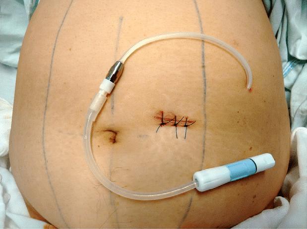 Figura-5-Cateter-al-termino-de-la-colocacion-percutanea-Fuente-archivo-clinico